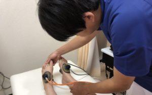 外反母趾治療施術写真